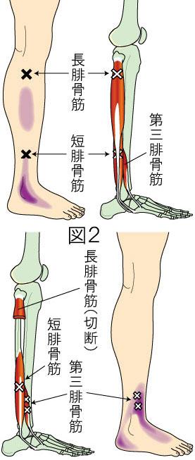 腓骨筋トリガーポイントによる下腿と足の痛み