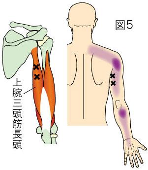 上腕三頭筋長頭トリガーポイントによる肩から上腕・前腕の後側の痛み
