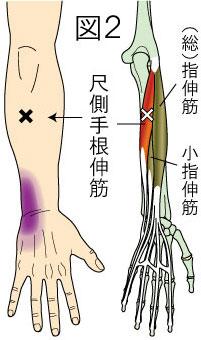 尺側手根伸筋トリガーポイントによる手首の痛み