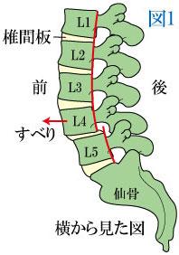 腰椎 すべり 症 症状