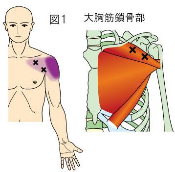 大胸筋鎖骨部トリガーポイントによる胸と肩の痛み