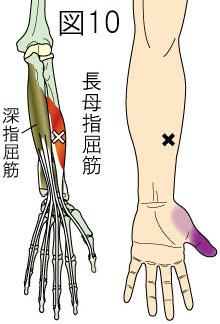 長母指屈筋トリガーポイントによる手・指の痛み