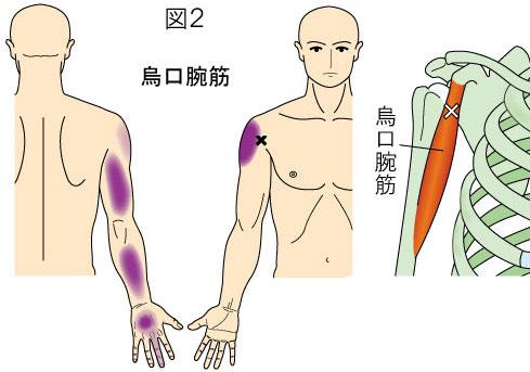 烏口腕筋トリガーポイントによる肩・上腕・前腕・手の痛み