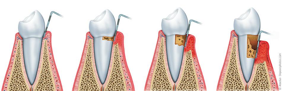 Die Zahnfleischtaschen werden immer tiefer, was mit einer Sonde gemessen werden kann. Das Zahnfleisch entzündet sich, ist dunkelrot und blutet beim Zähneputzen. Die Zähne werden locker und können sogar letztendlich ausfallen.