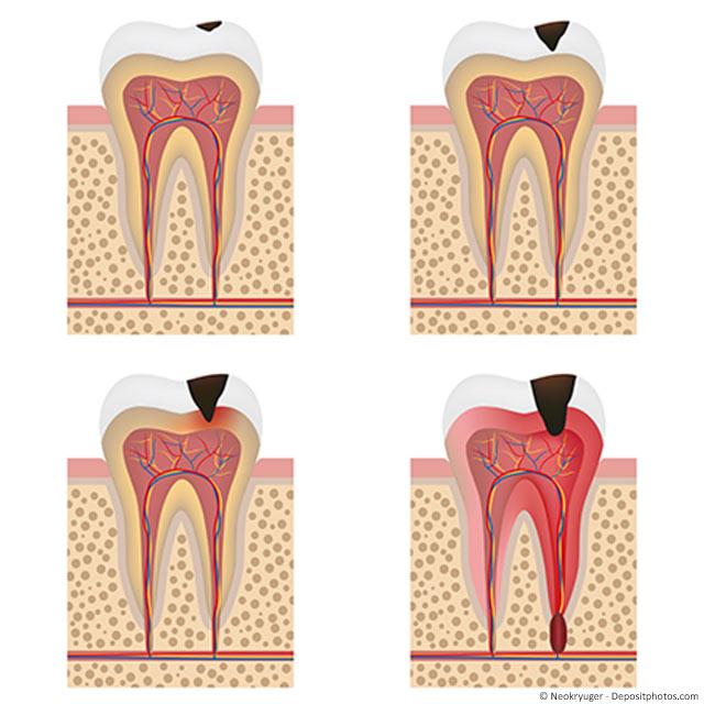 Warum Zahnnerven (Pulpa) absterben können und wann muss eine Wurzelbehandlung gemacht werden?
