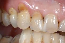 八戸 知覚過敏 歯科 歯ぎしり