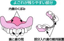 八戸市 くぼた歯科 入れ歯 バネの無い入れ歯