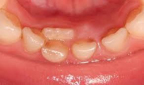八戸市の歯科くぼた歯科医院