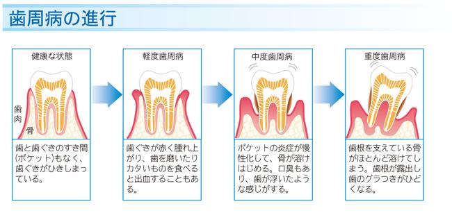 八戸市の歯医者 くぼた歯科医院 歯周病 歯石除去