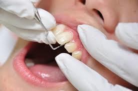 八戸市の歯医者くぼた歯科医院 定期健診