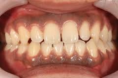 八戸市の歯医者 くぼた歯科医院 ホワイトニング