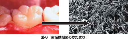 八戸市の歯医者 くぼた歯科医院 ホワイトニング 歯周病