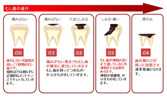 八戸市 くぼた歯科医院 乳歯 根 抜歯 虫歯 おすすめ