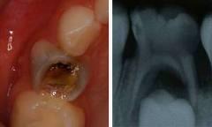 八戸市の歯医者くぼた歯科医院子供の根の治療