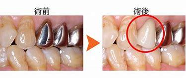 八戸 歯医者 CAD/CAM キャドキャム冠 保険