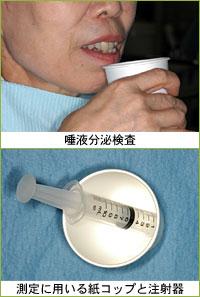 八戸 歯医者 ドライマウス 口が渇く シェーグレン症候群