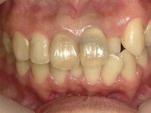 八戸市 ウォーキングブリーチ 神経の無い歯 変色 ホワイトニング