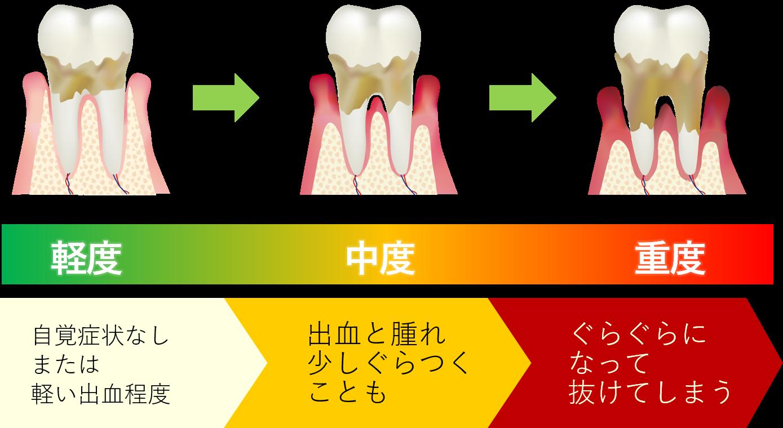 血 出る が から 歯茎