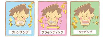 八戸 歯ぎしり 顎関節症 ナイトガード マウスピース