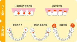 乳歯のむし歯
