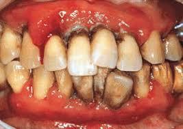 八戸 歯医者 歯周病 タバコ 口臭