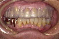 八戸 歯ぎしり ナイトガード マウスピース 顎関節症