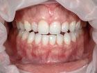 八戸 くぼた歯科 ホワイトニング 安い