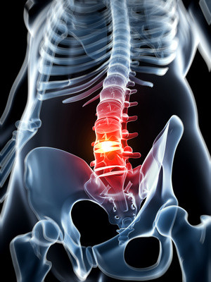 Back pain  from spine problem