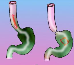 Fig.1- El ácido del estómago refluye hacia el esófago produciendo lesiones en la mucosa Fig.2-Esfínter gastroesofágico normal (contraído) impidiendo la salida del ácido del estómago