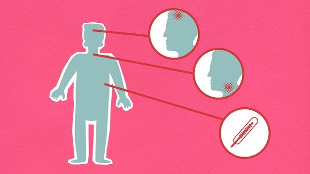التهاب الحنجرة هو حالة الحلق التي تسبب التهاب الحبال الصوتية الموجودة داخل الحنجرة، بسبب الإفراط في استخدام الصوت والتهيج والالتهابات