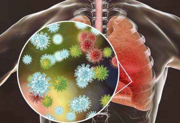 قد يتسبب فيروس كورونا بالتهاب الرئتين