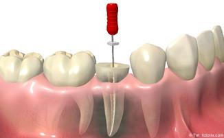 Eigene Zähne mit einer Wurzelbehandlung so lange wie möglich erhalten mit neuester Technik in der Zahnarztpraxis Pilsl in Garmisch-Partenkirchen © tnt fotolia.com