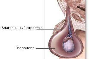 Порно с водянкой яичка