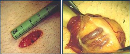 Минимальный разрез и максимальная эффективность при варикоцеле.