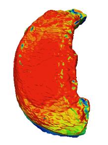 Plateau tibial de souris observé au microscope confocal
