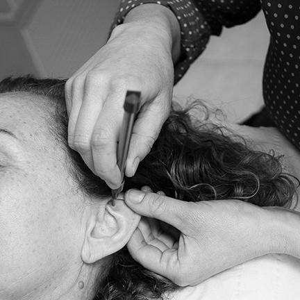 Initiation à l'auriculothérapie