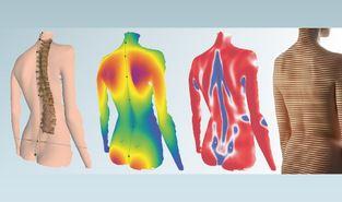 Wirbelsäulenrekonstruktion und Wirbelsäulenvermessung mit 3D-Programm