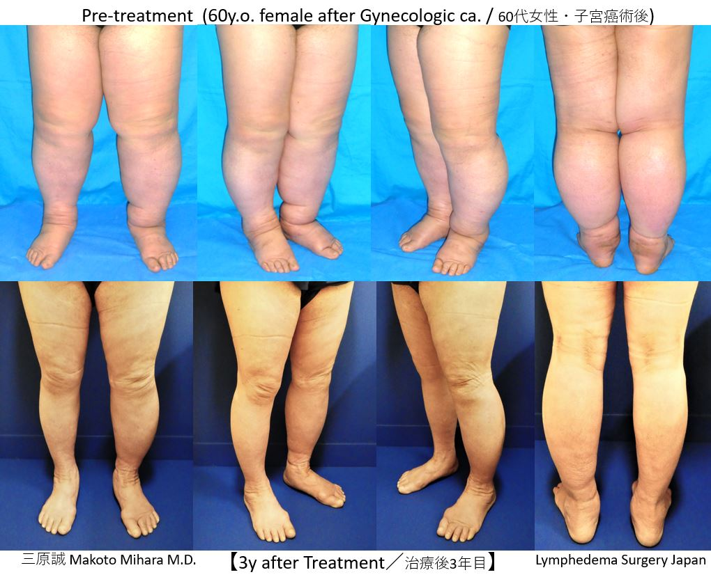 Microvascular surgery for lymphedema