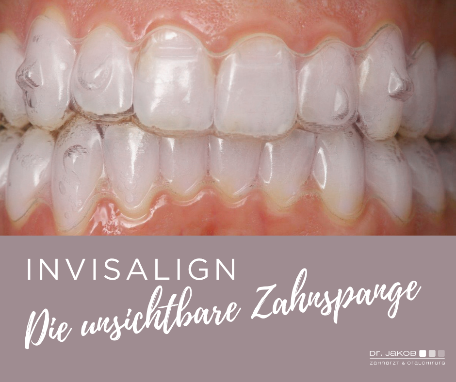 Invisalign - die unsichtbare Zahnkorrektur