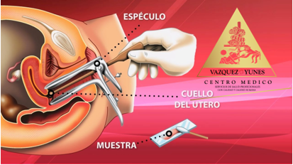 El Papanicolaou es una prueba que consiste en tomar células del cuello del útero, para luego ser estudiadas y lograr detectar cambios anormales.