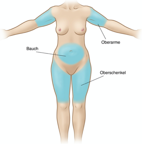 Behandlungsareale Radiofrequenz Cellulite