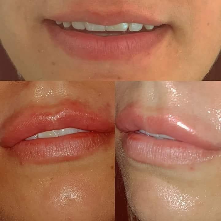 Lippenvolum