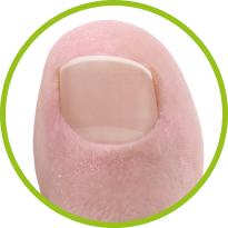 Gesunder Fußnagel nach Nagelpilz-Behandlung