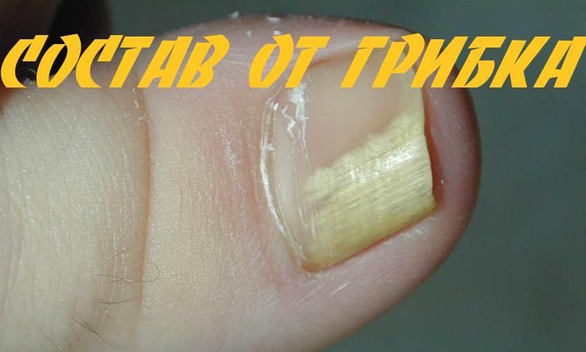 Грибок стопы и ногтей лечение уксусом