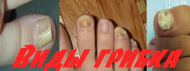 Проверенный метод лечения запущенного грибка ногтей