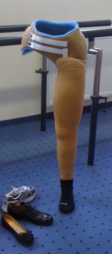 So kann eine Hüftex-Prothese auch aussehen