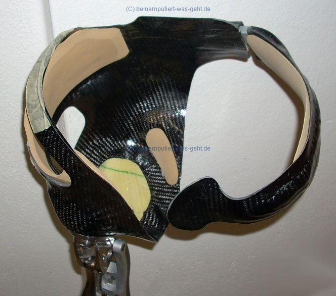 Hüftexprothese (Beckenkorb aus Carbon)