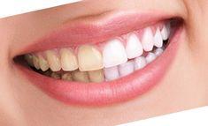 Zahnaufhellung weiße Zähne Kosmetisches Zahnbleaching Lübeck