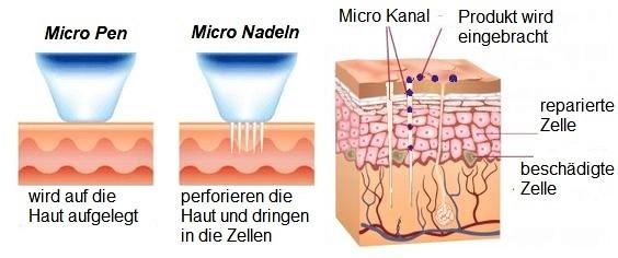 was passiert beim Microneedling Hautverbesserung Lübeck Beauty Kosmetikstudio Lübeck