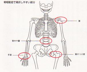 骨粗鬆症で骨折しやすい箇所